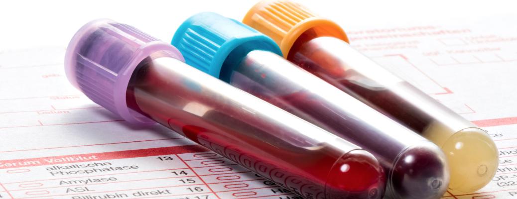 Анализы при беременности - Телебеби