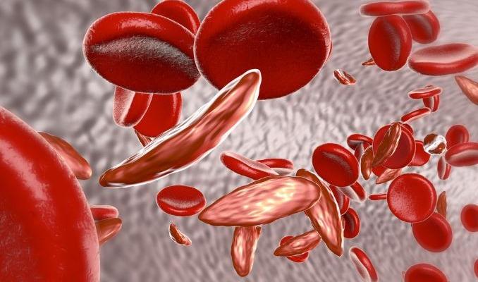 Железодефицитная анемия - Телебеби